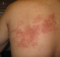 年轻人也会得带状疱疹