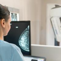 乳腺癌筛查应该选择X线还是超声好?