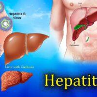 在美华裔乙型肝炎患者如何申请药物补贴/减免